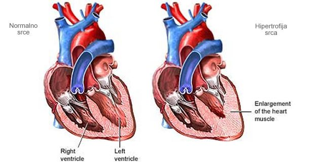 Modifikovana klasifikacija hipertrofije leve komore radi obezbeđivanja novog uvida u progresiju iz hipertenzije do srčane insuficijencije