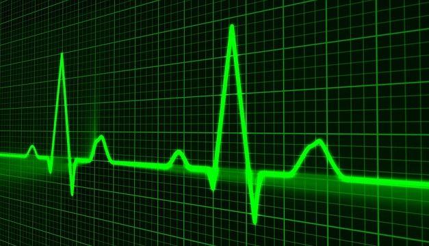Evropske smernice o prevenciji kardiovaskularnih bolesti u kliničkoj praksi iz 2016. godine – desetogodišnji kardiovaskularni rizik
