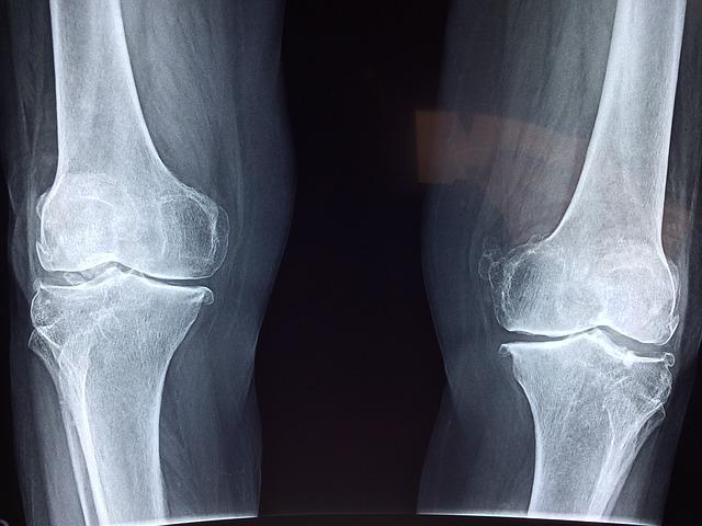 Hondroitin sulfat je jednako efikasan kao COX-2 inhibitor (celecoxib) kod simptomatskog osteoartritisa kolena
