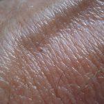 Upotreba hidrohlortiazida i rizik od nemelanomskog raka kože: studija slučaja iz Danske